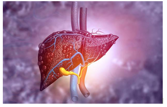 10 Factors Affecting Your Liver Health