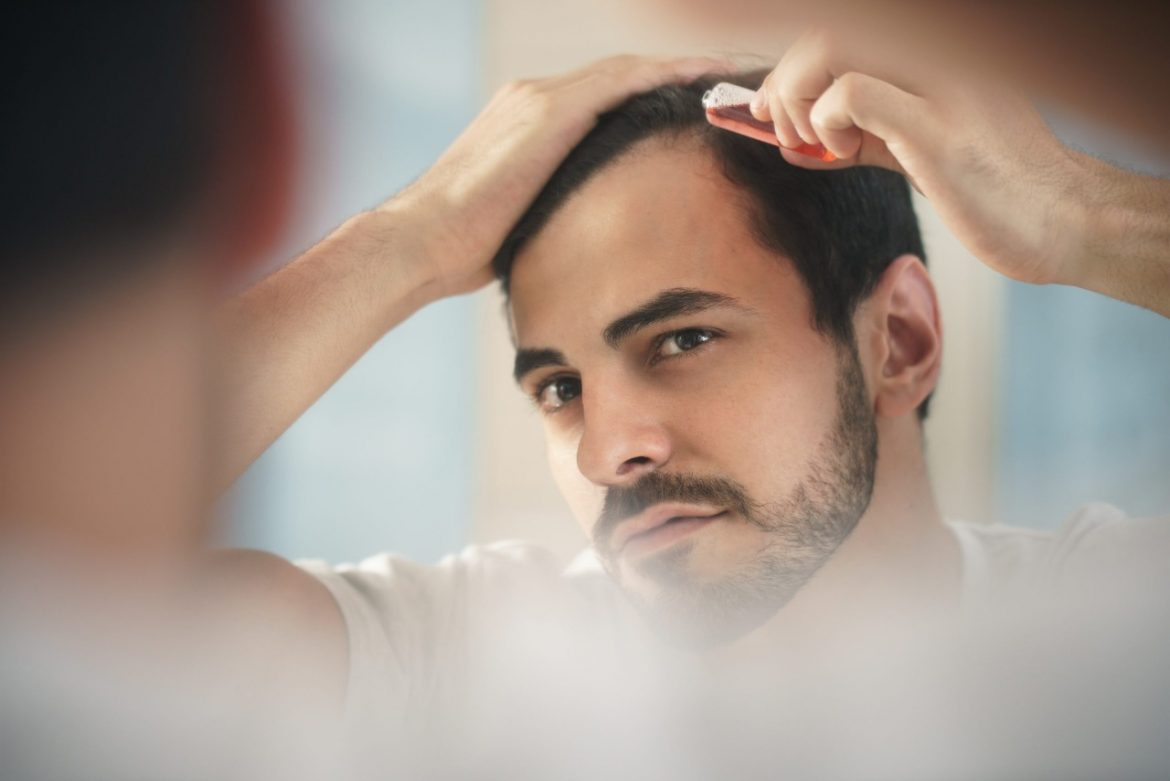 What Is The Success Rate Of Hair Transplant? Is It A Beneficial Solution To My Baldness?